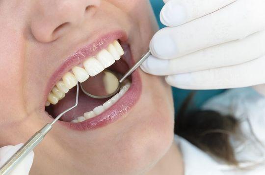 DentalCheckUp1